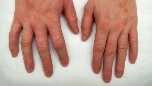 13 Different Types of Eczema